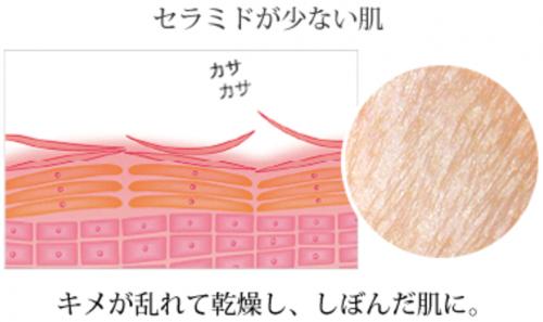 セラミドが少なくなった肌の断面図