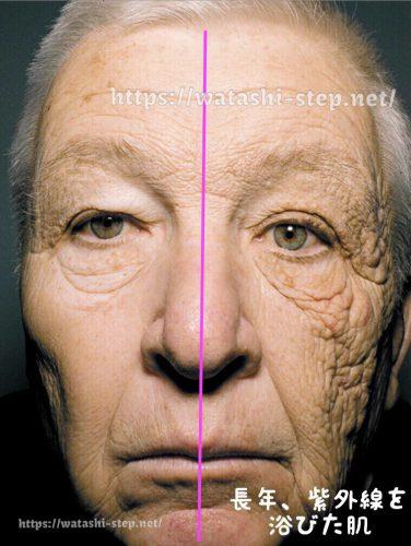 紫外線を浴びて光老化を起こした肌